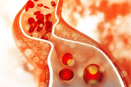 Aký význam má cholesterol