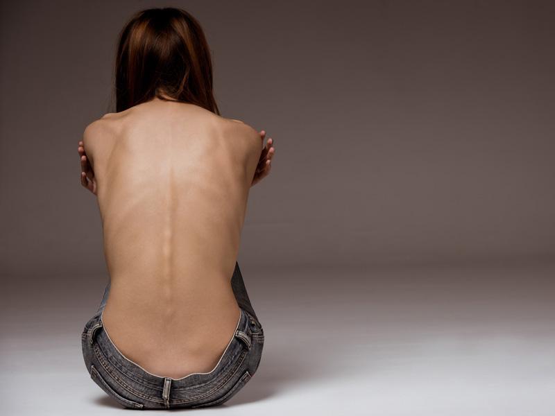 Anorexia a menštruácia