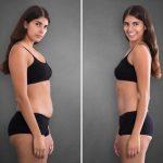 Ako sa zbaviť podkožného tuku?