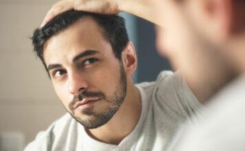 o transplantácii vlasov