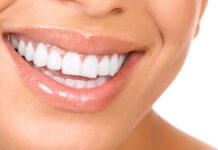 žiarivé a biele zuby
